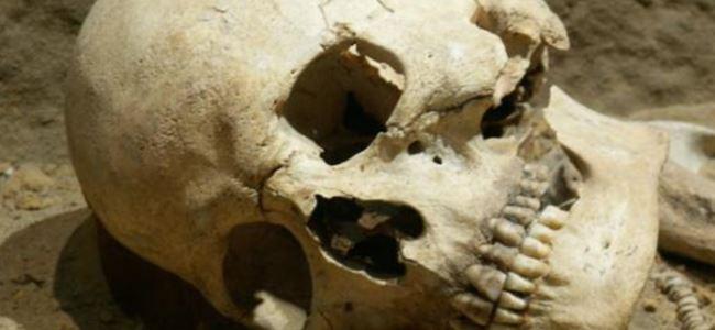 Bin yıllık ameliyat kafatasının izinden belli oldu