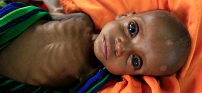 Somalide 6 çocuk açlıktan öldü