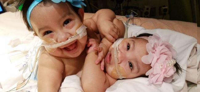 Siyam ikizler için yeni başlangıç