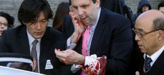 ABD Büyükelçisi saldırıya uğradı