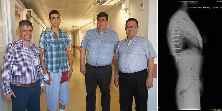 Devlet Hastanesi'nde skolyoz ameliyatları devam ediyor