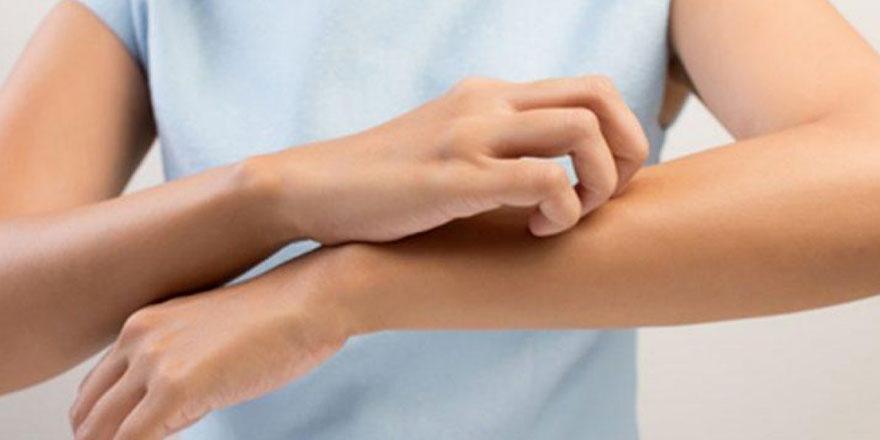 Egzama Hastalığı (Atopik Dermatit) Nedir? Belirtileri ve Nedenleri Nelerdir?