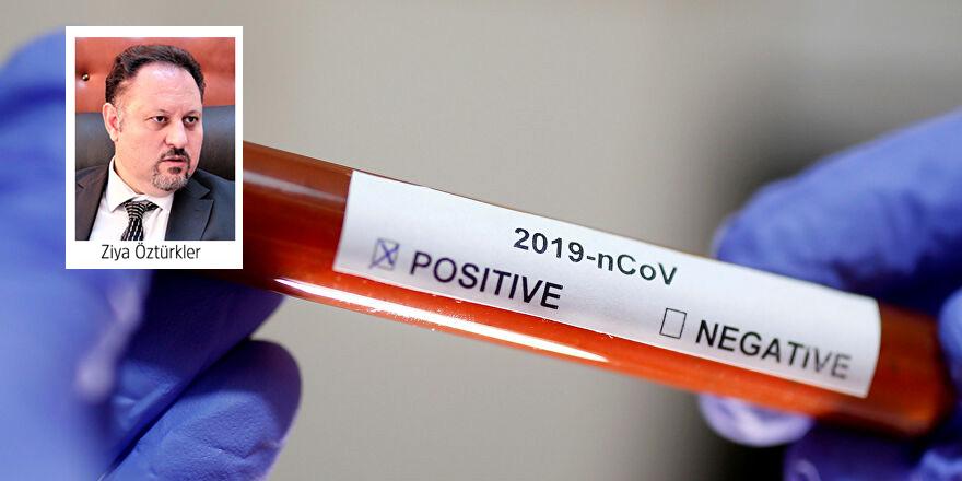 """""""COVID-19 testim pozitif, 9 gündür tedavim sürüyor"""""""