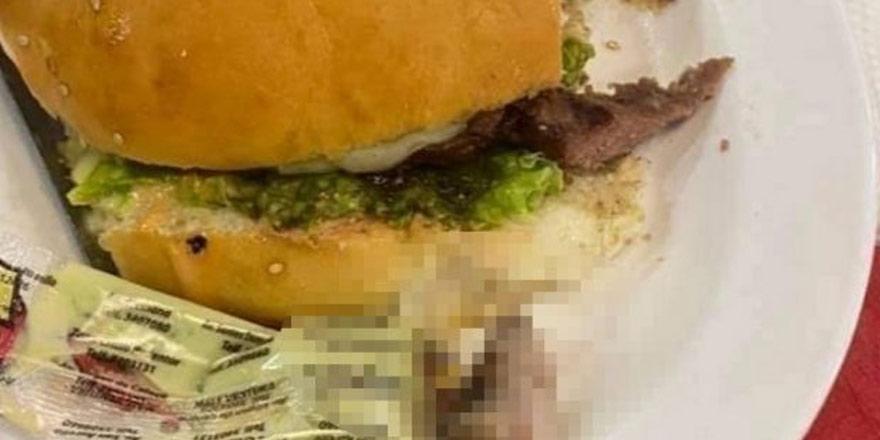 Hamburgerin içinden insan parmağı çıktı