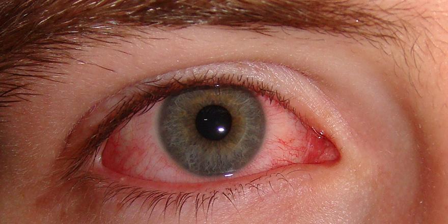 Reaktif artrit hastalığı